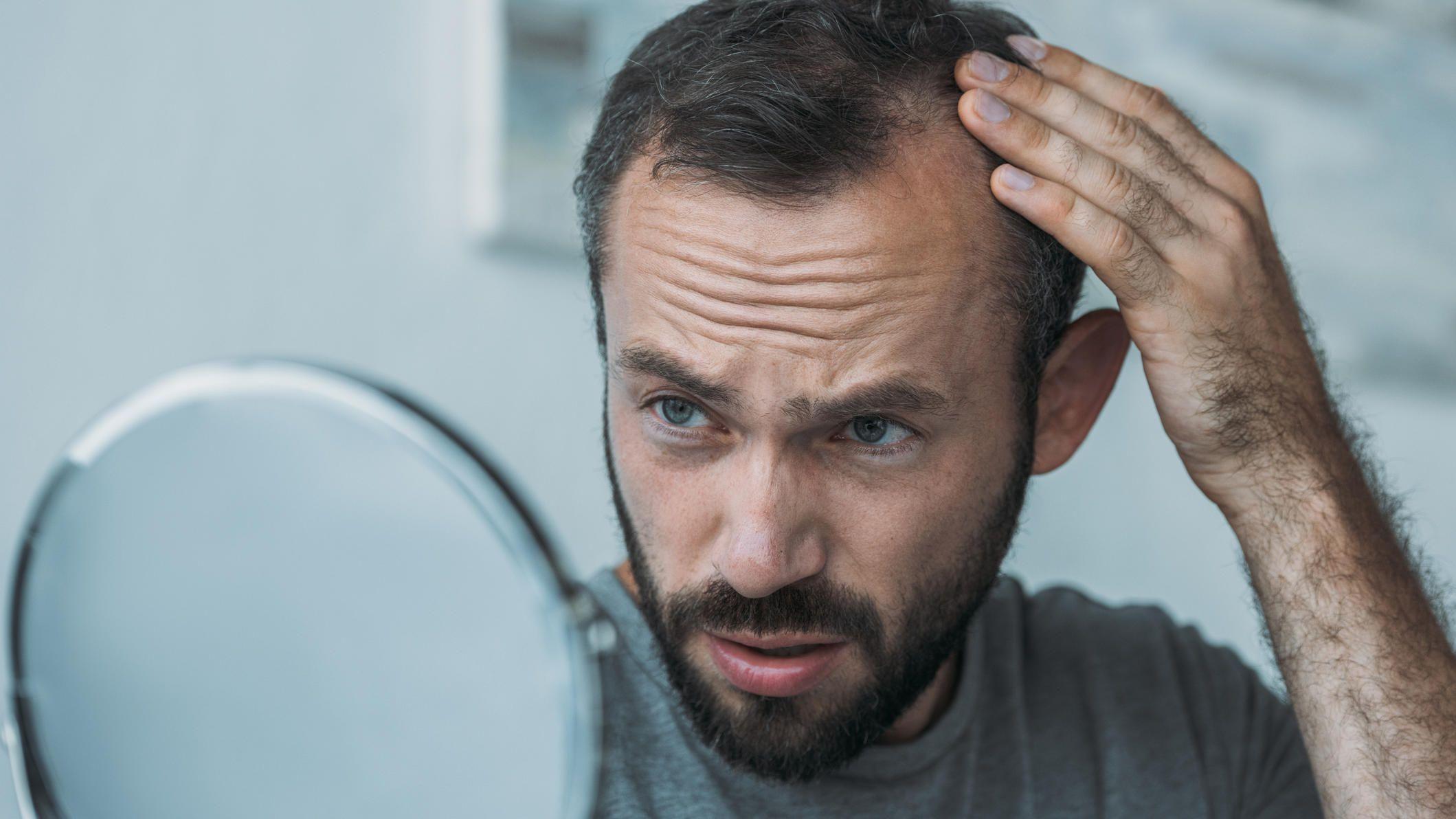 Mit 20 glatze Glatze mit